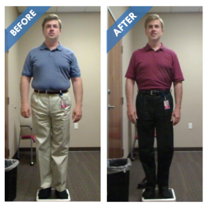 Phillip-SPP-Before-and-After